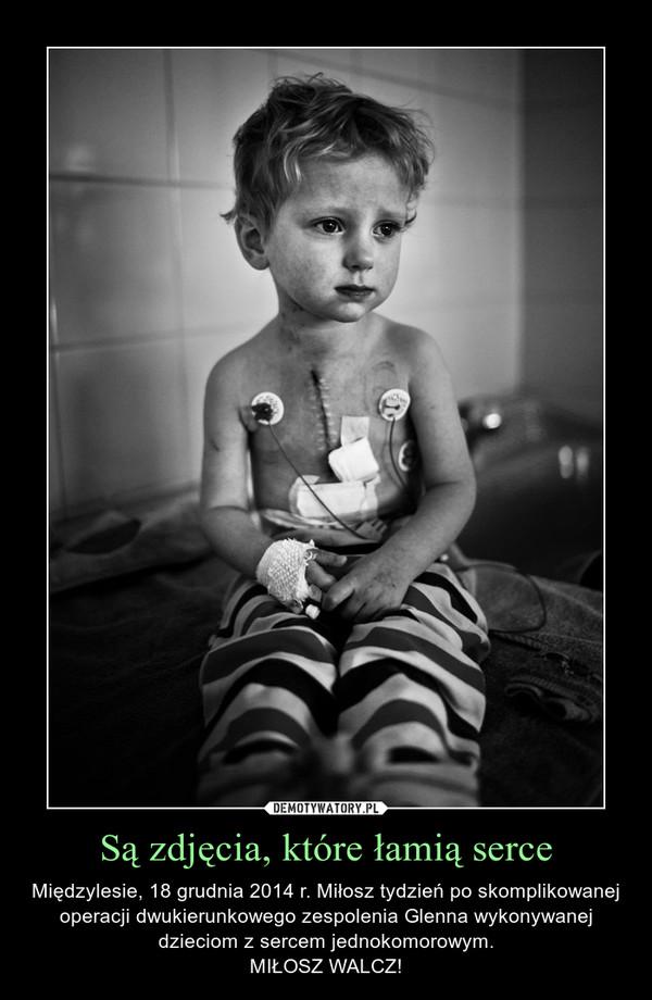 Są zdjęcia, które łamią serce – Międzylesie, 18 grudnia 2014 r. Miłosz tydzień po skomplikowanej operacji dwukierunkowego zespolenia Glenna wykonywanej dzieciom z sercem jednokomorowym.MIŁOSZ WALCZ!