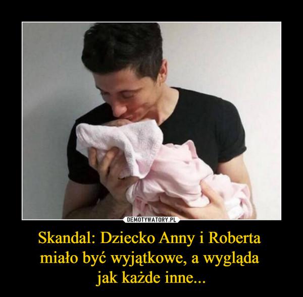 Skandal: Dziecko Anny i Roberta miało być wyjątkowe, a wygląda jak każde inne... –