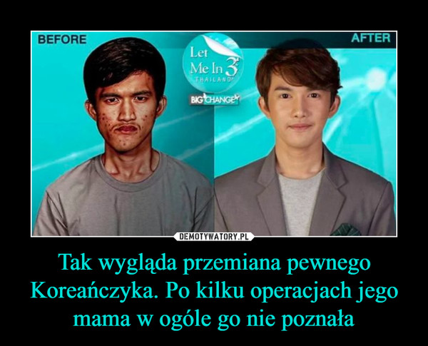 Tak wygląda przemiana pewnego Koreańczyka. Po kilku operacjach jego mama w ogóle go nie poznała –