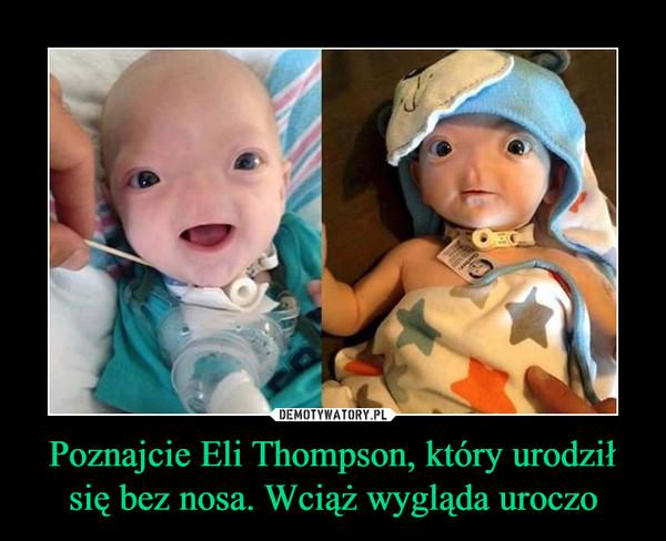 Poznajcie Eli Thompson, który urodził się bez nosa. Wciąż wygląda uroczo –