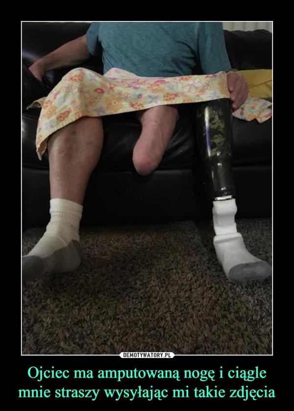 Ojciec ma amputowaną nogę i ciągle mnie straszy wysyłając mi takie zdjęcia –
