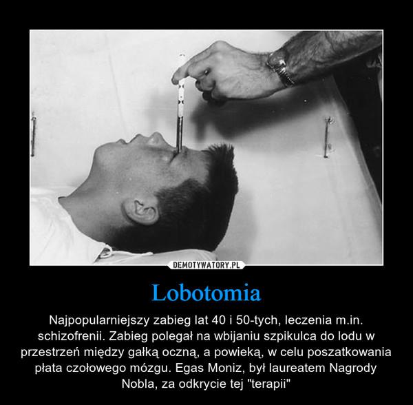"""Lobotomia – Najpopularniejszy zabieg lat 40 i 50-tych, leczenia m.in. schizofrenii. Zabieg polegał na wbijaniu szpikulca do lodu w przestrzeń między gałką oczną, a powieką, w celu poszatkowania płata czołowego mózgu. Egas Moniz, był laureatem Nagrody Nobla, za odkrycie tej """"terapii"""""""