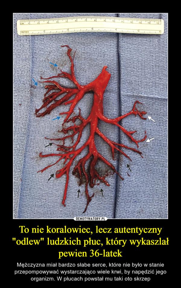 """To nie koralowiec, lecz autentyczny """"odlew"""" ludzkich płuc, który wykaszlał pewien 36-latek – Mężczyzna miał bardzo słabe serce, które nie było w stanie przepompowywać wystarczająco wiele krwi, by napędzić jego organizm. W płucach powstał mu taki oto skrzep"""