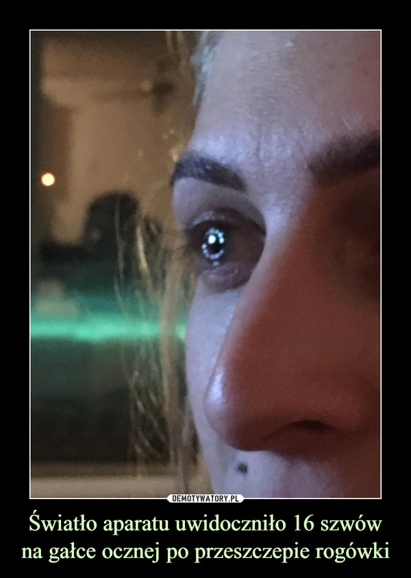Światło aparatu uwidoczniło 16 szwów na gałce ocznej po przeszczepie rogówki –