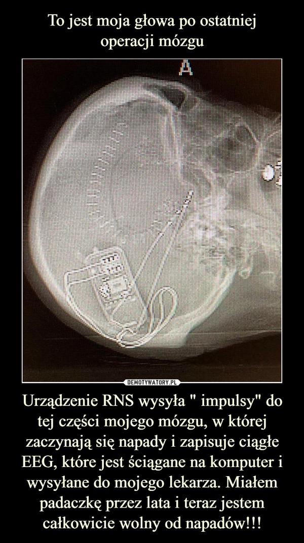 """Urządzenie RNS wysyła """" impulsy"""" do tej części mojego mózgu, w której zaczynają się napady i zapisuje ciągłe EEG, które jest ściągane na komputer i wysyłane do mojego lekarza. Miałem padaczkę przez lata i teraz jestem całkowicie wolny od napadów!!! –"""