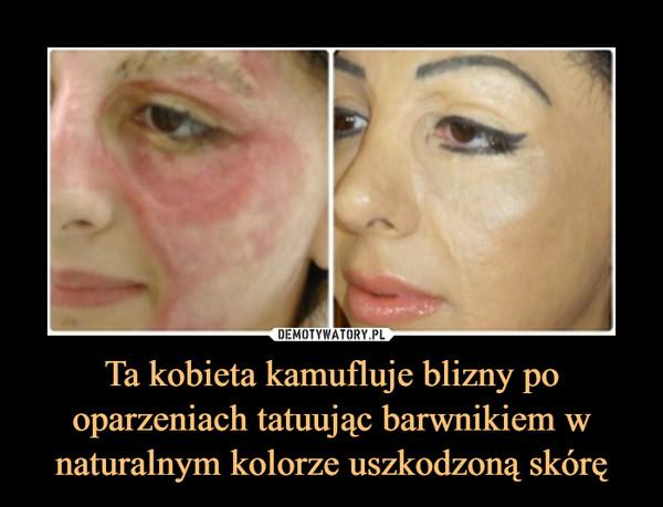 Ta kobieta kamufluje blizny po oparzeniach tatuując barwnikiem w naturalnym kolorze uszkodzoną skórę –